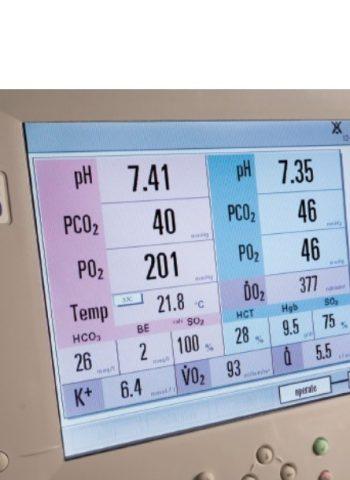 CDI® Blood Parameter Monitoring System 550