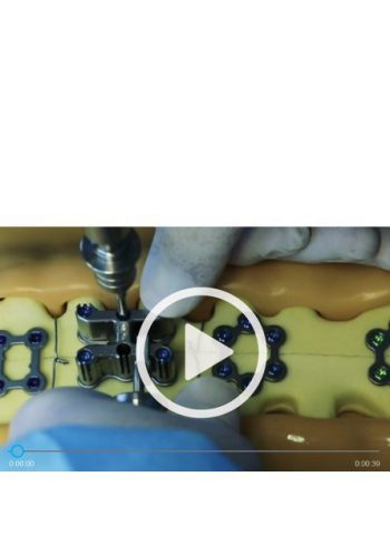 6 screws driven in 15 seconds